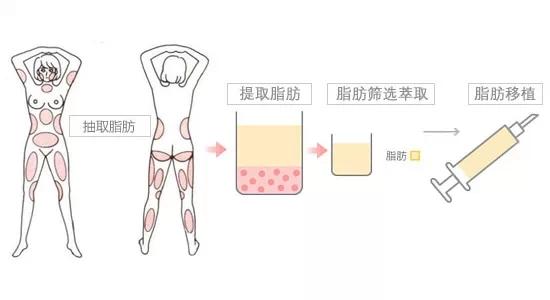 北京自体脂肪面部填充 自体脂肪填充塑形