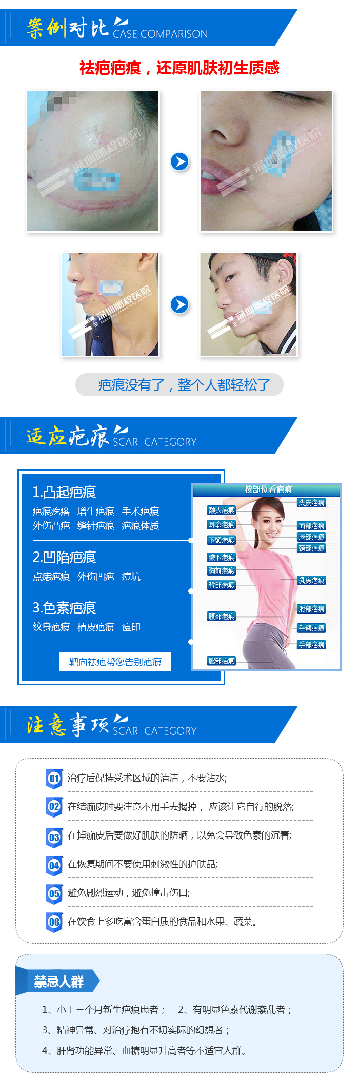深圳祛疤 激光技术祛除疤痕 疤痕增生 凹凸疤痕 个性化制定方案 安全