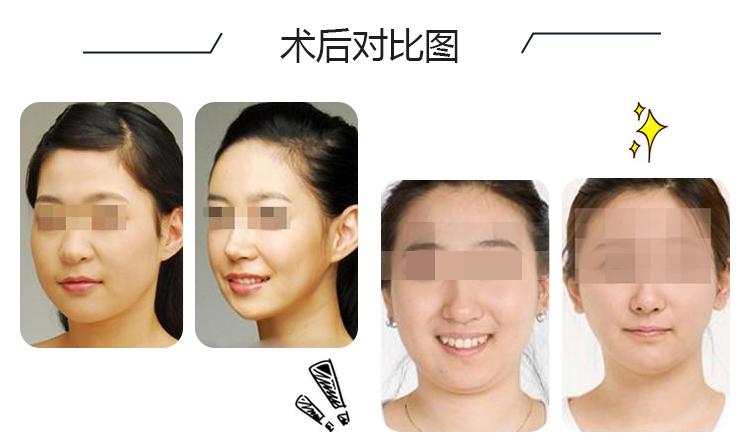 瘦脸针一针的剂量_北京衡力瘦脸针 单次 一针拥有女神同款小脸