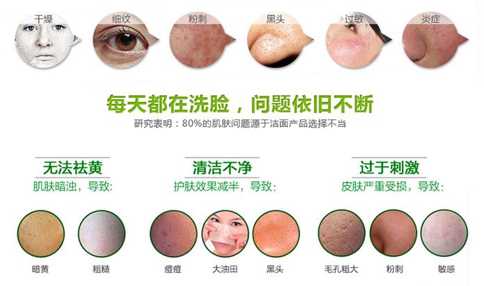 深圳韩国超微小气泡 肌肤污垢清道夫 请提前三天预约