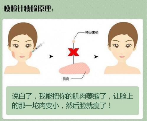 瘦脸针以后怀孕有没有影响