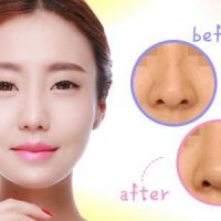 福州进口膨体隆鼻 改善塌鼻 塑造立体美鼻形态