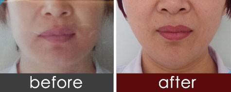 济南海薇玻尿酸微创隆下巴