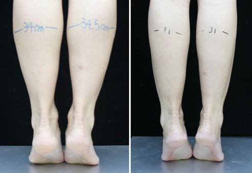 北京瘦腿针