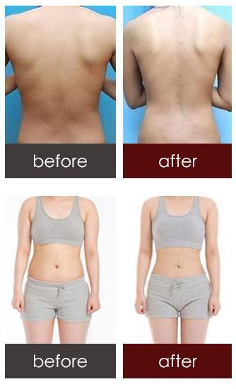 水动力吸脂减肥