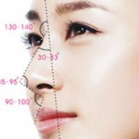 深圳鼻综合 韩国进口硅胶假体+耳软骨垫鼻尖 塑造全方位好鼻子