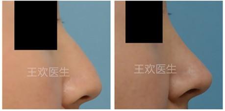 北京隆鼻+垫下巴