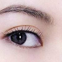 北京韩式三点双眼皮