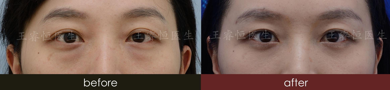 北京内切/外切眼袋